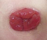 sarheling etter operasjon