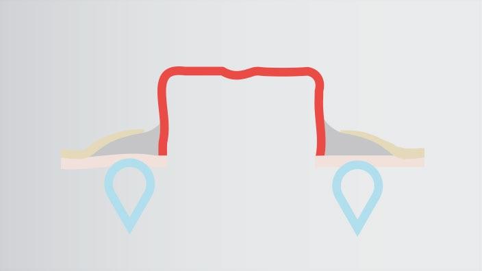 Hvordan Brava® beskyttende tetningsring fungerer